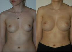breast_enhancement_1