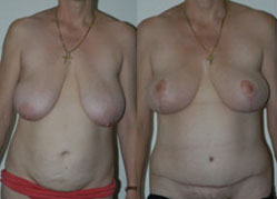 breast_enhancement_10