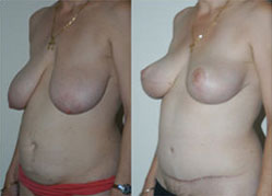 breast_enhancement_11