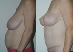 breast_enhancement_12