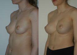 breast_enhancement_2