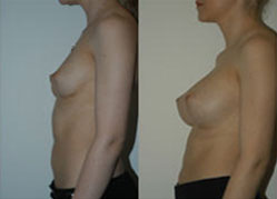 breast_enhancement_3