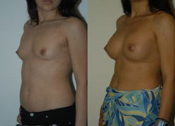 breast_enhancement_5