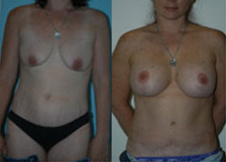 breast_enhancement_7