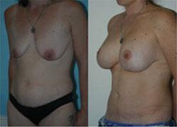 breast_enhancement_8