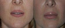 lip_enhancement_1