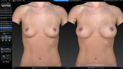 Vectra 3-D breast simulation