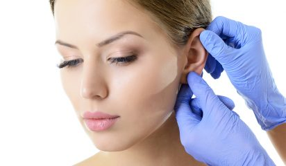 Otoplasty Surgery Perth
