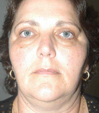 Blepharoplasty / Eyelid Surgery Perth