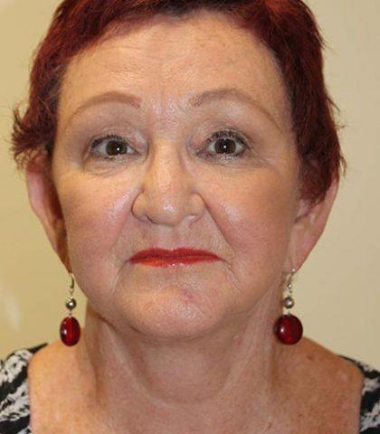 Neck Lift Surgery Perth