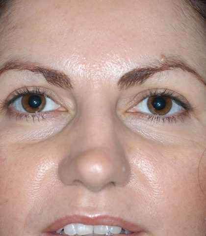 Blepharoplasty Procedure After
