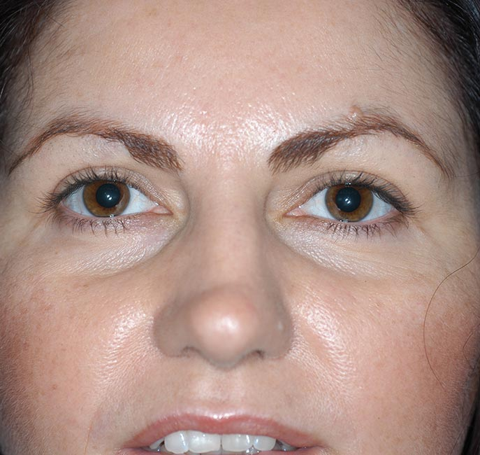 Blepharoplasty | Perth Cosmetic Surgery