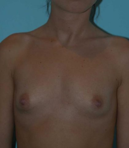 Breast Augmentation Perth