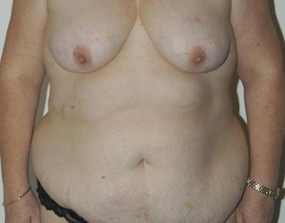 Breast Reduction and Mastopexy
