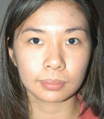 Blepharoplasty Surgery Before
