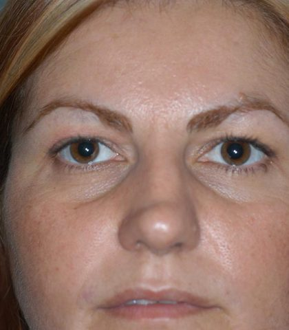 Blepharoplasty Procedure Before